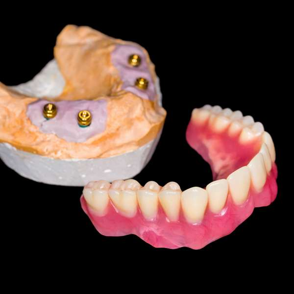 Removabledenture670536836_5616x3744.jpeg